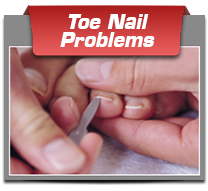 Toe Nail Problems